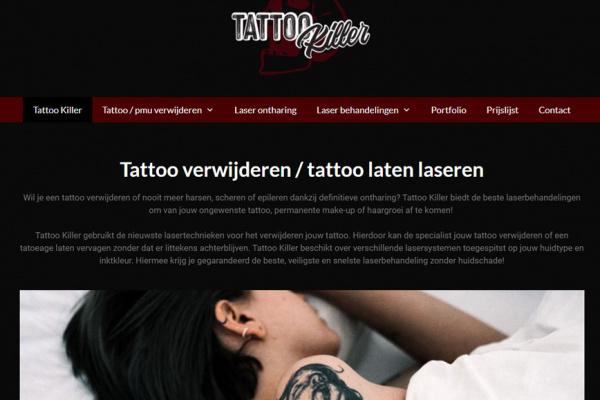 Tattoo verwijderen Tattoo Killer Kampen